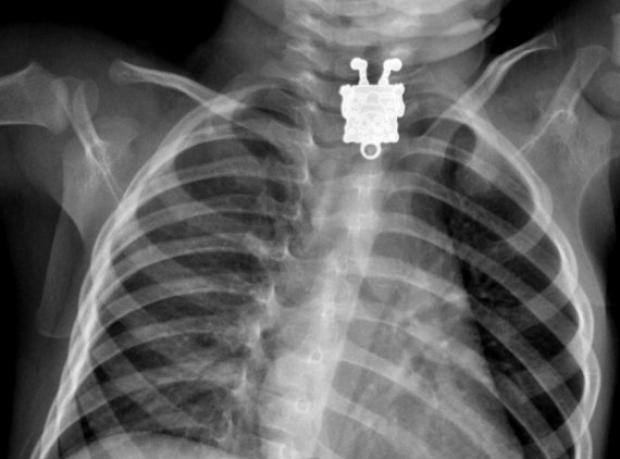 Röntgen Filminde Tanıdık Bir Yüz
