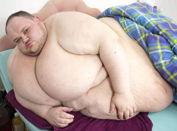 Günde 10 Bin Kalori Alıyor