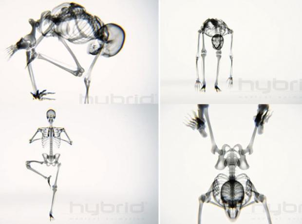 Yoganın X - Ray'i Büyülüyor